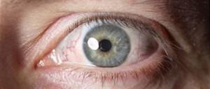 oorzaken oogontsteking